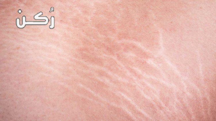 أسباب ظهور علامات تمدد الجلد وكيفية علاجها والوقاية منها