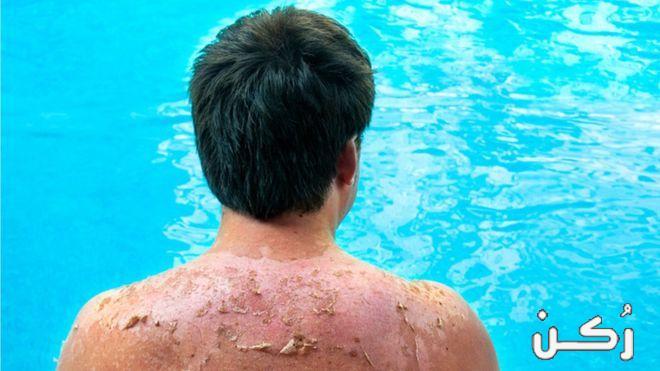 أعراض وعلاج حروق الشمس في المنزل