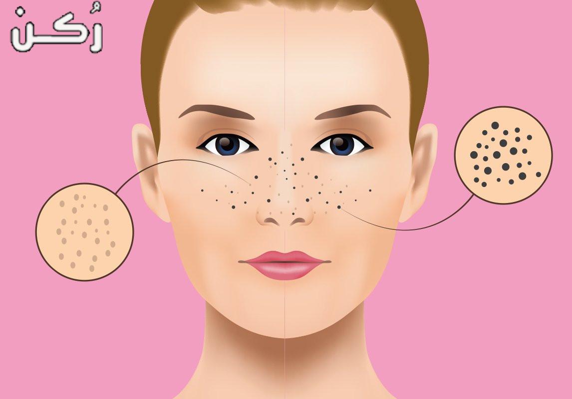 كيفية علاج الرؤوس السوداء للحفاظ على جمال بشرة الوجه
