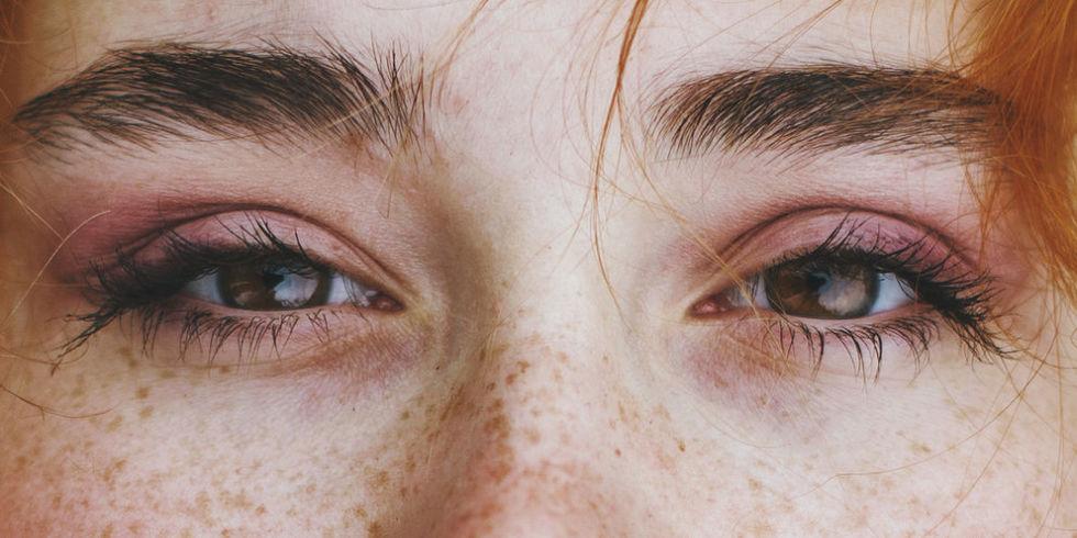 أسباب ظهور النمش في الوجه وكيفية التخلص منه