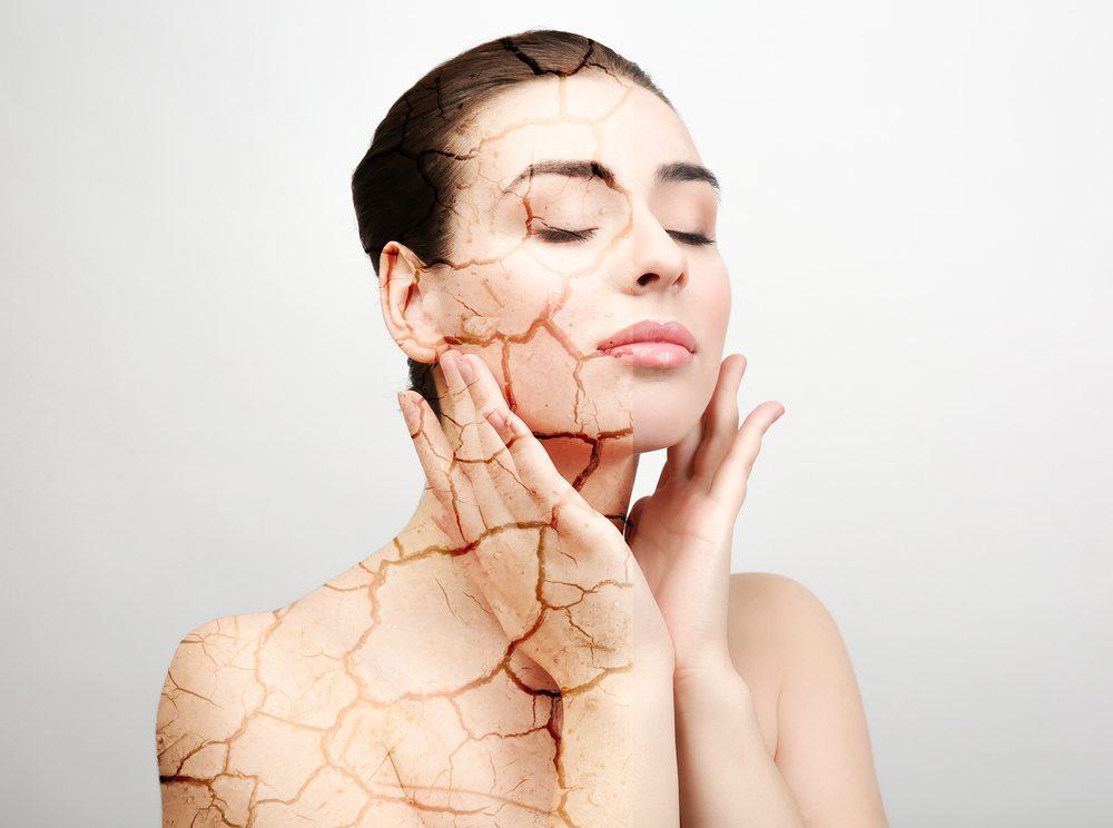ماسك طبيعي يساعد في ترطيب البشرة الجافة