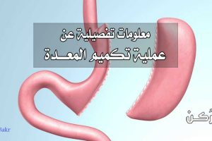 عملية تكميم المعدة لإنقاص الوزن وطريقة إجرائها ومخاطرها