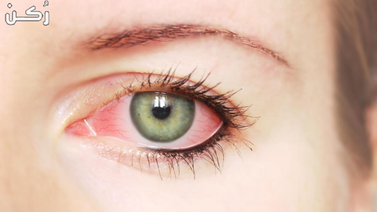 اسباب ارتفاع ضغط العين والأعراض وطرق العلاج