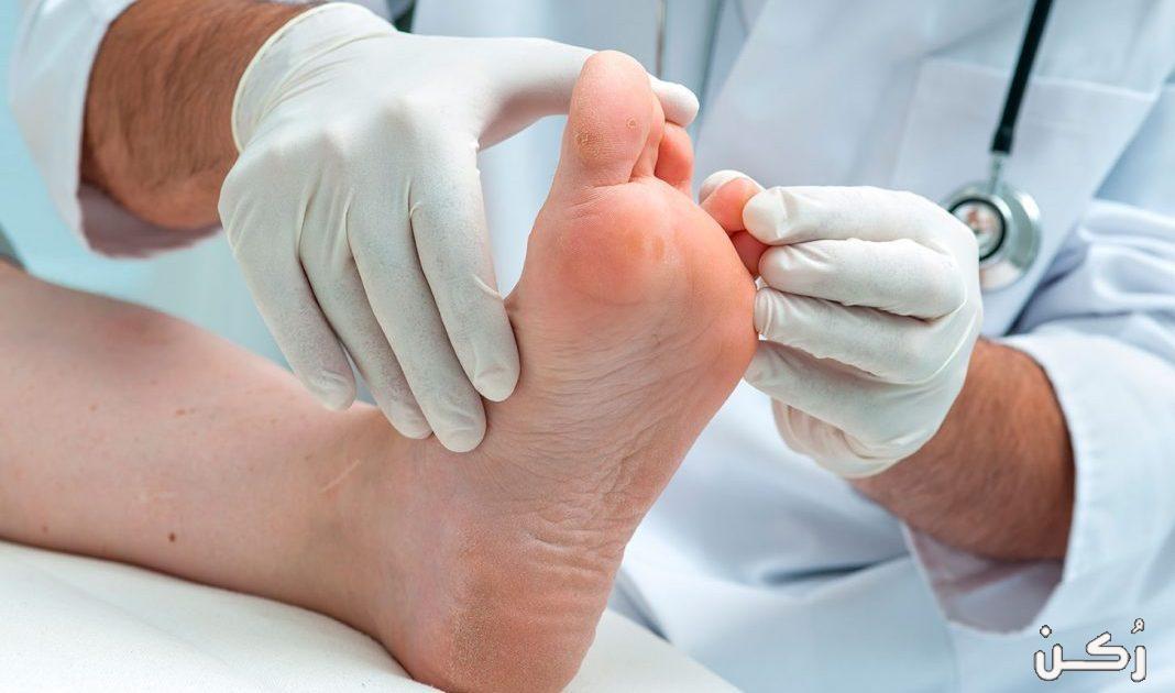 طرق علاج فطريات ما بين أصابع القدمين وكيفية الوقاية منها