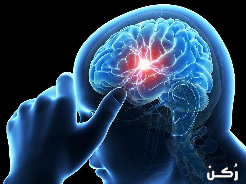 تعرف على السكتة الدماغية واعراضها وانواعها وطريقة اكتشافها