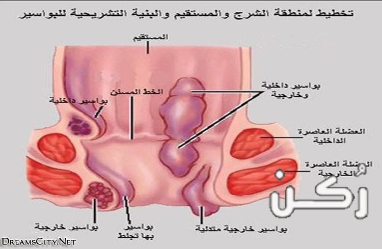 أعراض وعلاج البواسير الداخلية من الدرجة الأولى