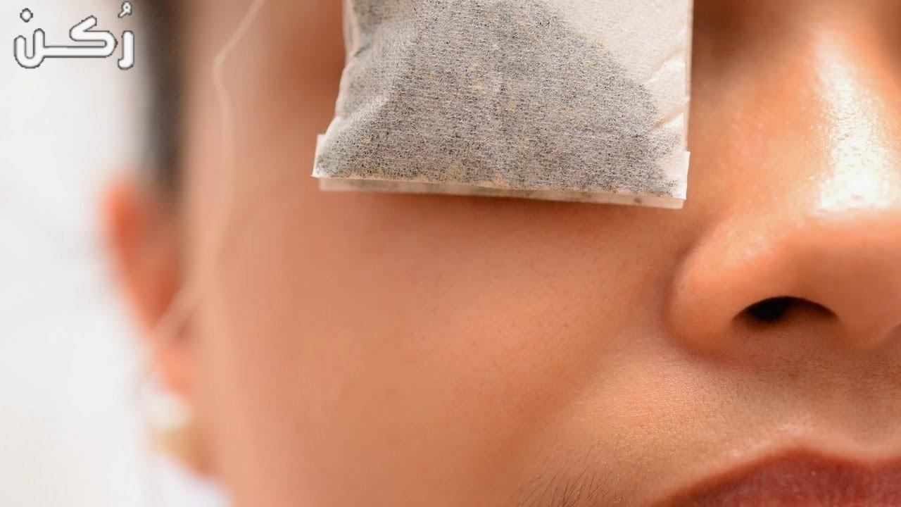طرق علاج العين بالأعشاب الطبيعية مجربه وأمنه
