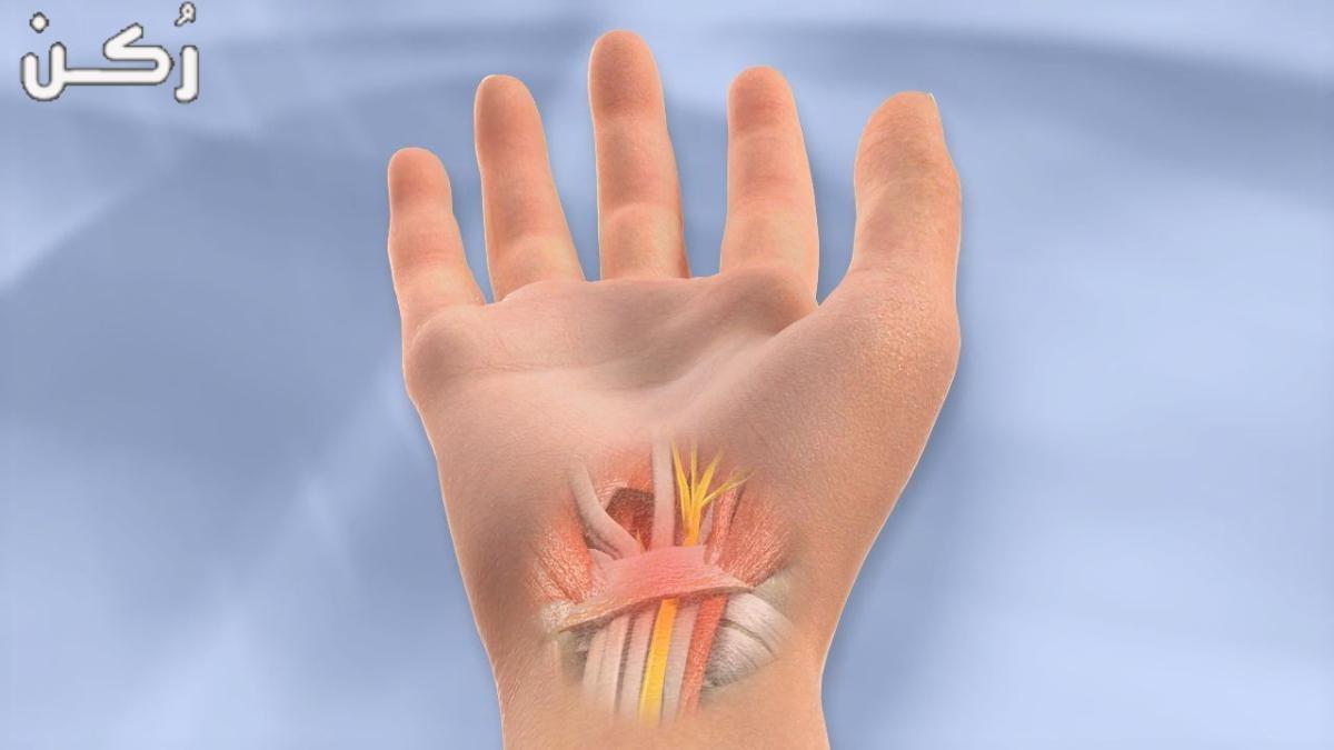 ما هو التهاب الاوتار وكيف اعالج التهاب الاوتار
