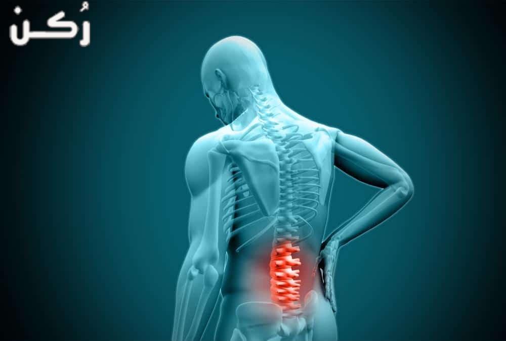 اسباب الم اسفل الظهر وطرق علاجه بطرق طبية وطبيعية