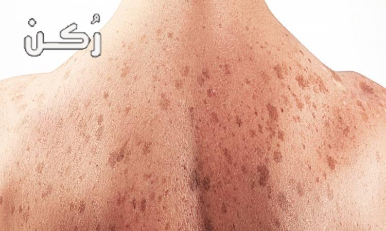 أعراض وانواع وأسباب وعلاج سرطان الجلد