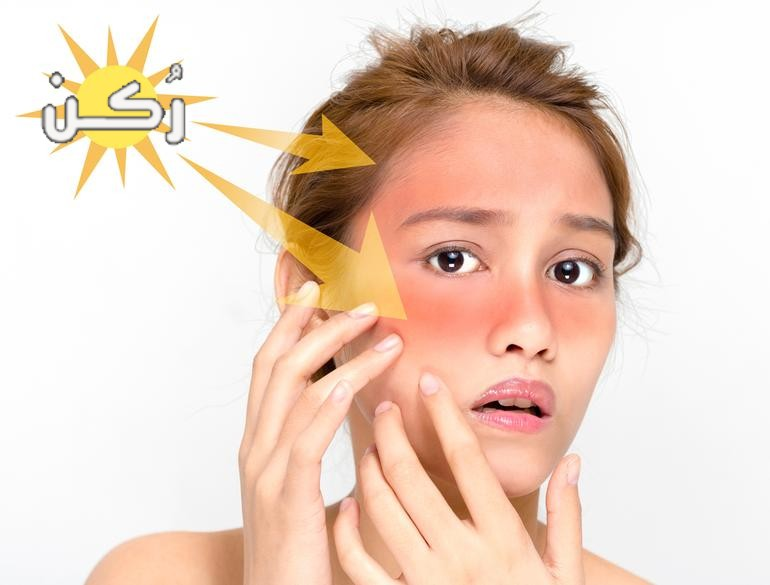 افضل طريقة لعلاج تورم والتهابات الوجه بسبب اشعة الشمس