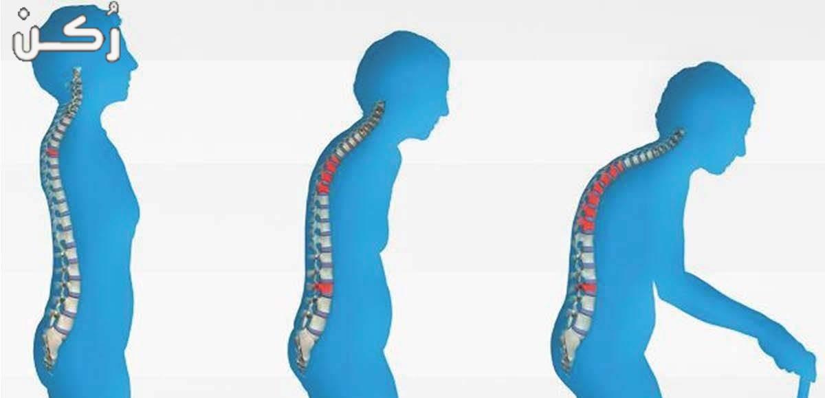 لين العظام أسبابة وأعراضه وطرق علاجه والوقاية منه