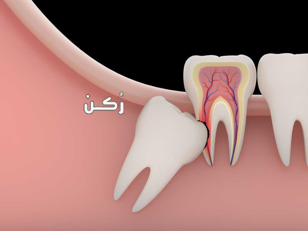 تفسير رؤية ألم الأسنان في الحلم للعزباء والمتزوجة والرجل