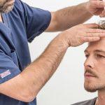 عمليات زراعة الشعر ، كيف تتم وما هي طرقها وتقنياتها ومخاطرها؟