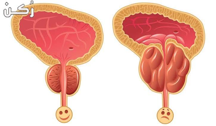 دواء تيرازين Terazin أقراص لعلاج تضخم البروستاتا