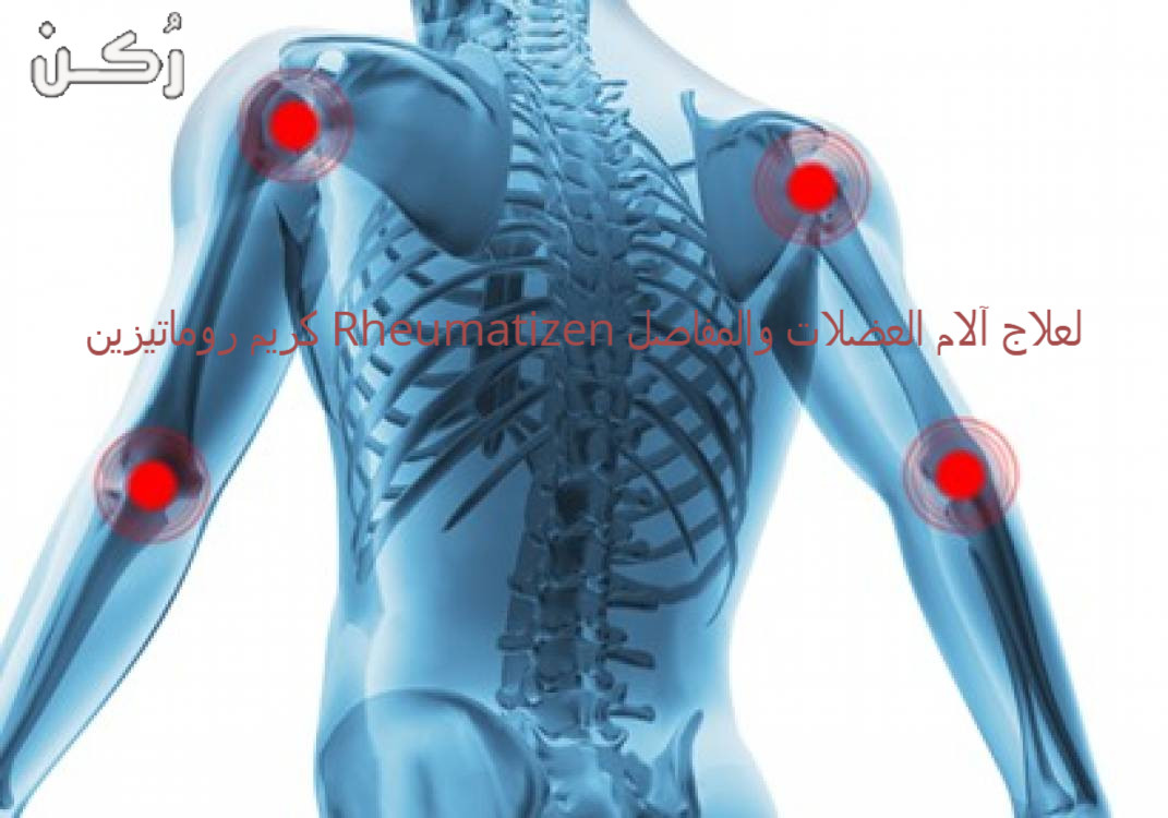 كريم روماتيزين Rheumatizen لعلاج آلام العضلات والمفاصل