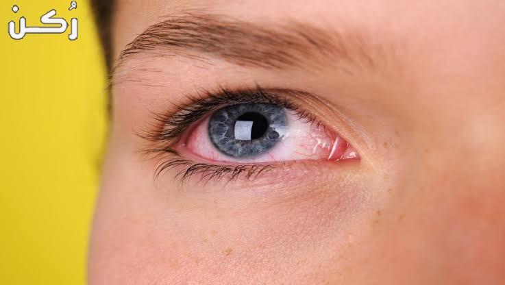قطرة تيموبتول Timoptol للعين دواعي الاستعمال وسعرها 2020