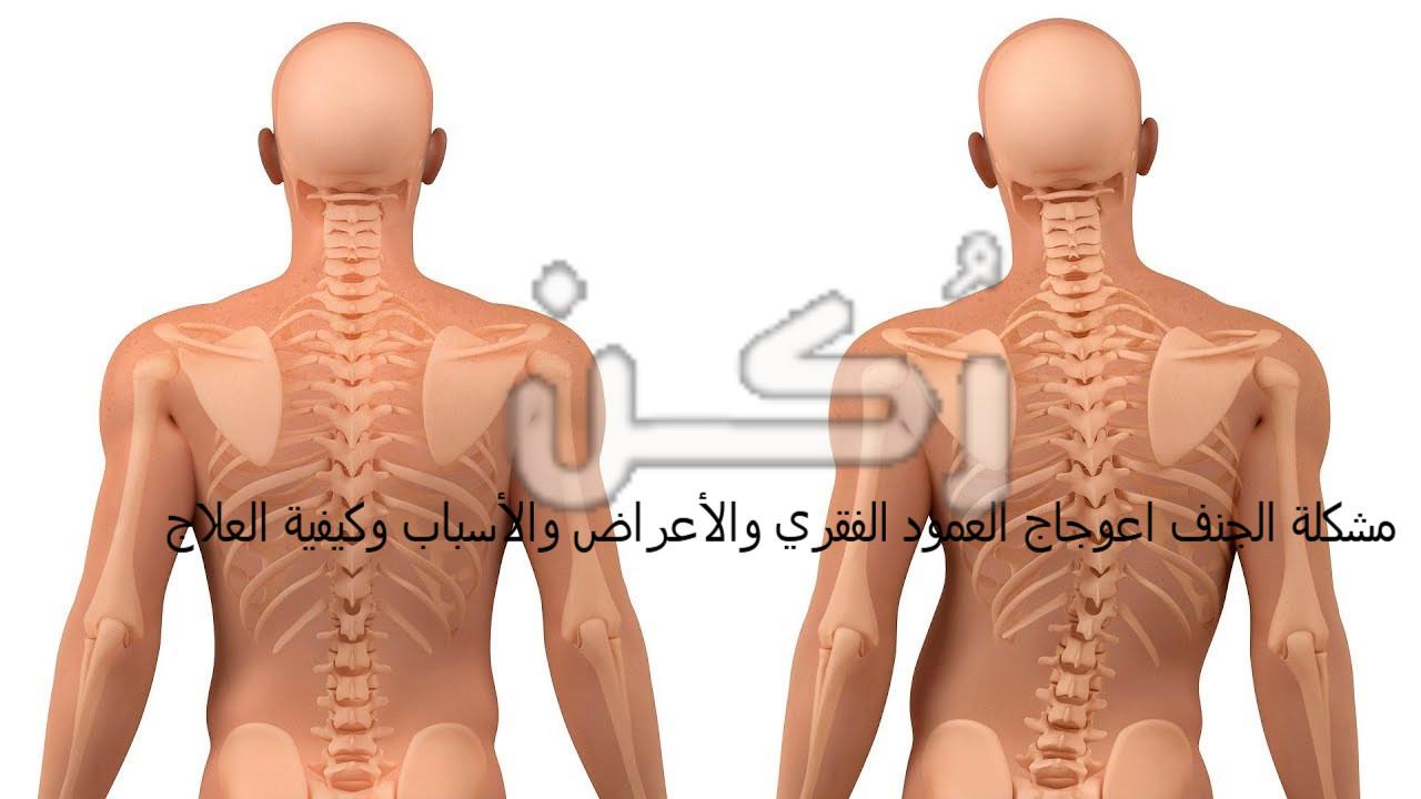 مشكلة الجنف اعوجاج العمود الفقري والأعراض والأسباب وكيفية العلاج