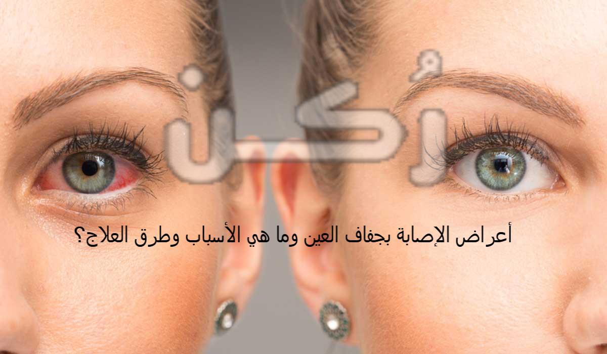أعراض الإصابة بجفاف العين وما هي الأسباب وطرق العلاج؟