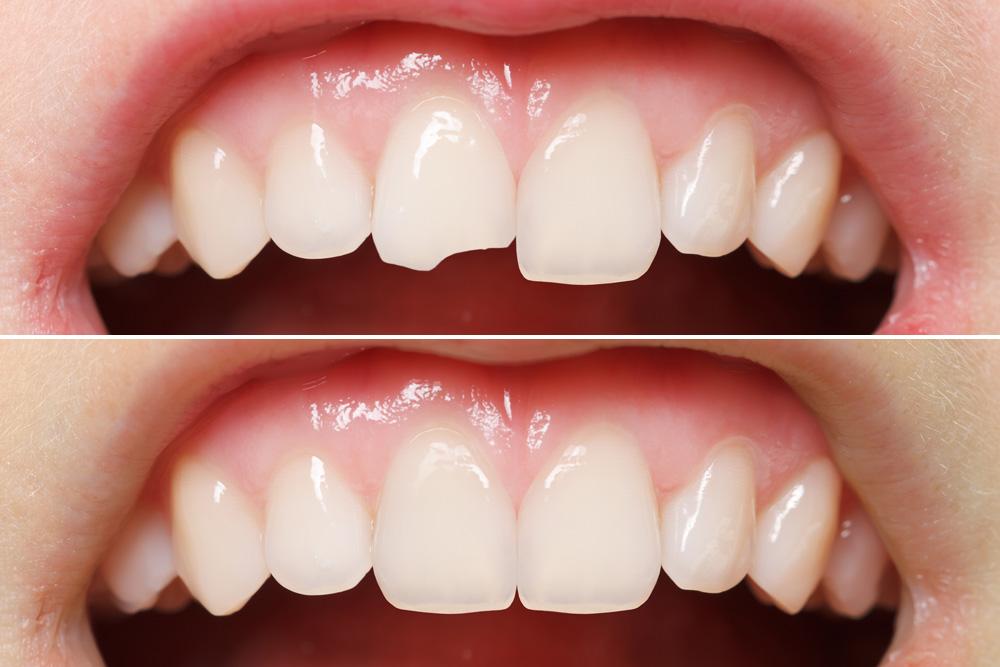 برد الأسنان للتقويم أضراره ومميزاته وتكلفته