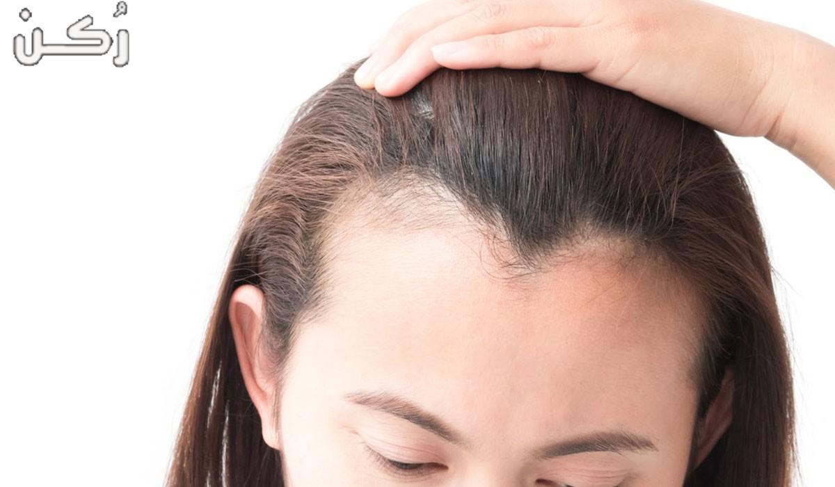 طرق منع تساقط الشعر وتكثيفه بسهولة بوصفات طبيعية