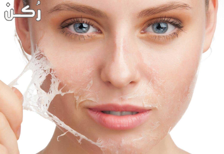 طريقة عمل ماسك لتقشير البشرة لإزالة الجلد الميت