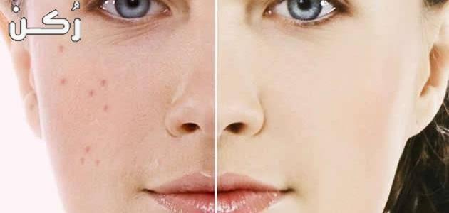 وصفات لتصفية الوجه