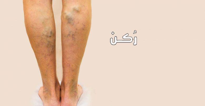 دوالي الأوردة ما هي الأعراض والأسباب وطرق العلاج