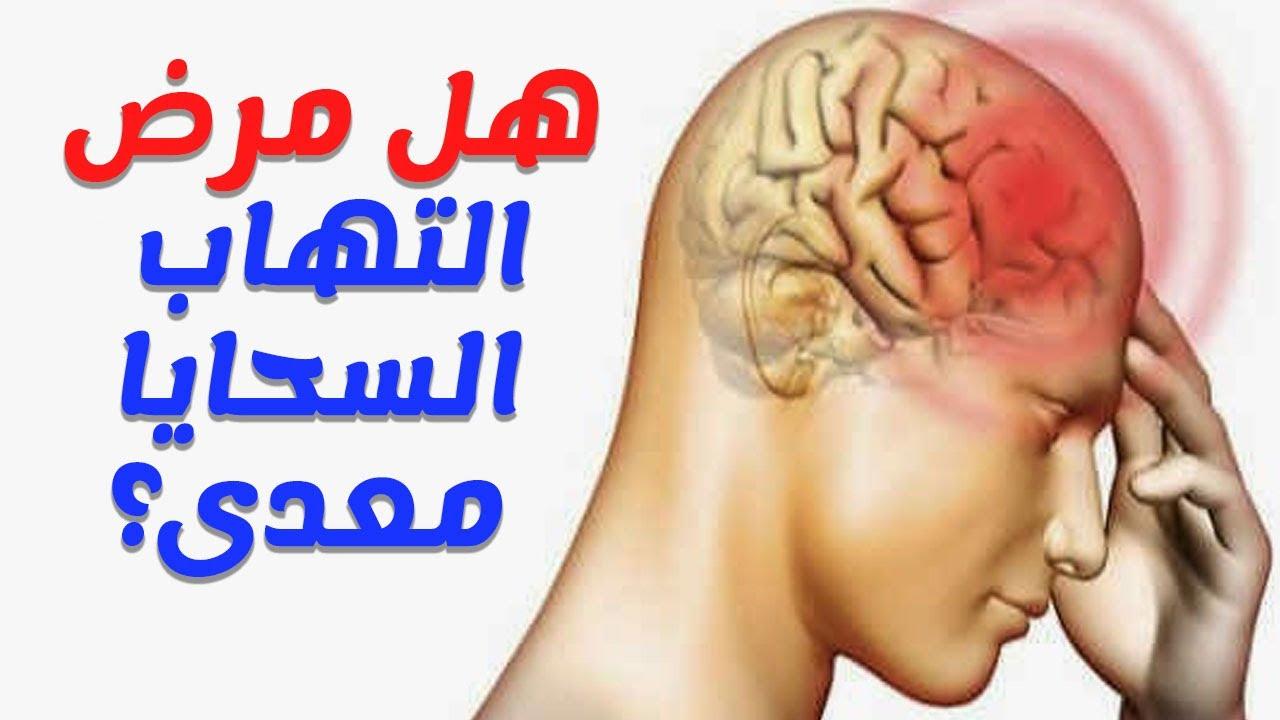 التهاب السحايا تعريفه وأعراض وأسبابه وكيفية الوقاية منه