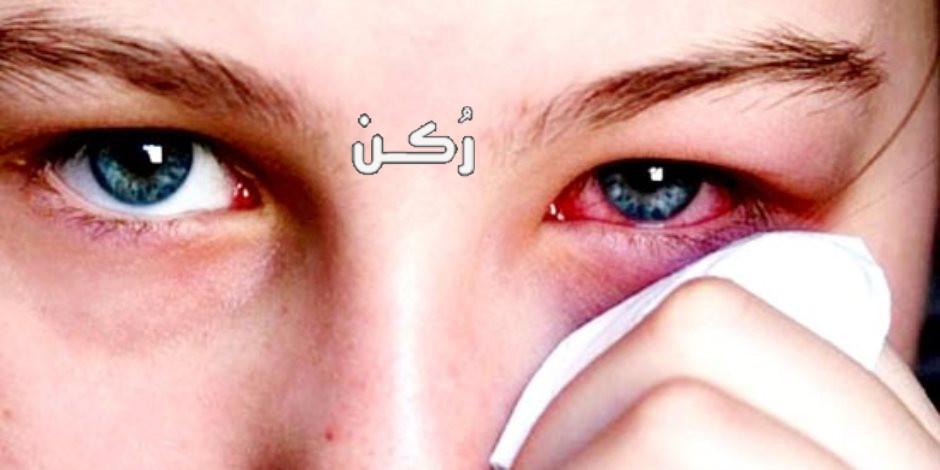 جلطة العين أسبابها وأعراضها وطرق علاجها والوقاية منها