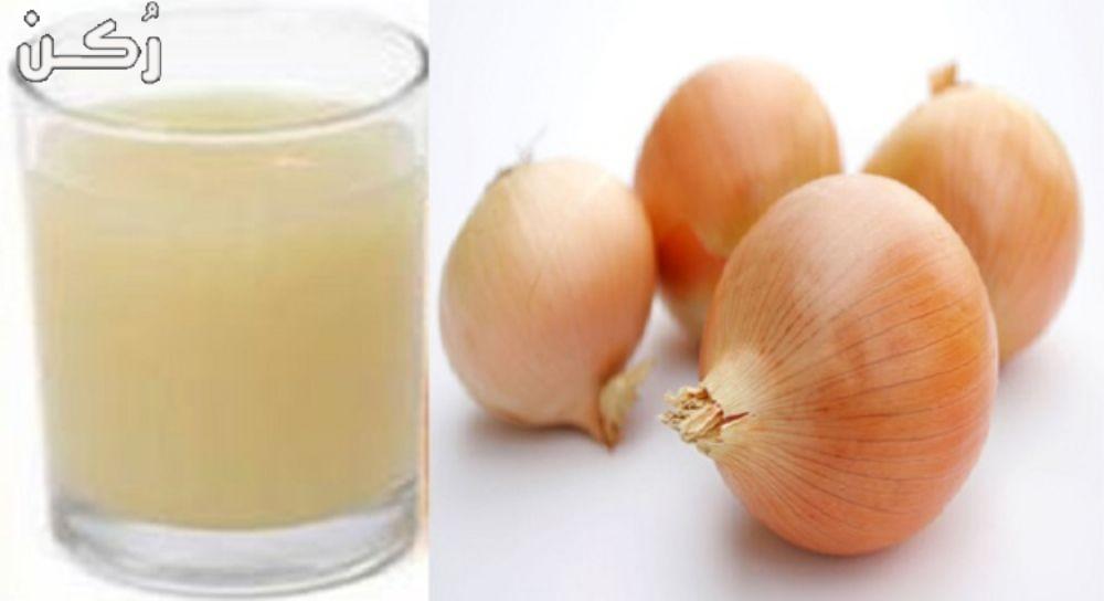 عصير البصل لكثافة الشعر وعلاج الثعلبة