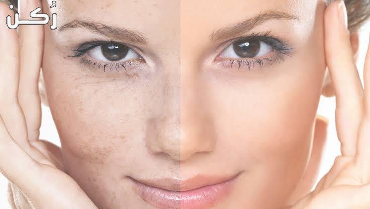 طرق لعلاج تصبغات الجلد بوصفات طبيعية وعلاجات طبية