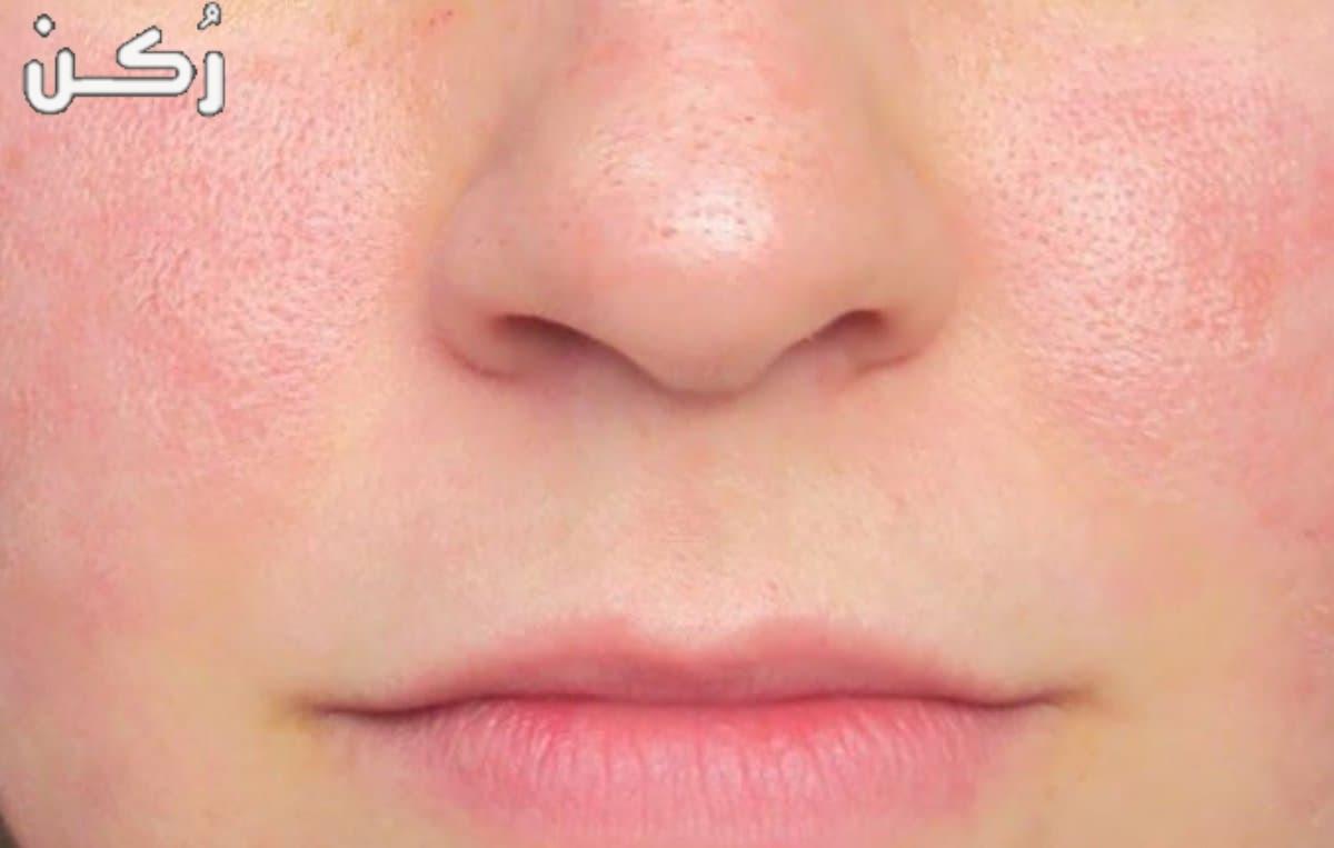 كيفية تسكير مسامات الوجه..أسباب المسامات الواسعة