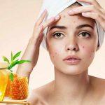 ماسك العسل للوجه علاج الحروق وعلامات تقدم العمر
