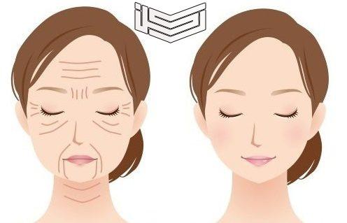 تكلفة عملية شد الوجه بالخيوط الذهبية مميزاتها وعيوبها