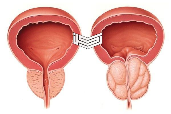 نشرة زاترال Xatral أقراص لعلاج تضخم البروستاتا واحتباس البول