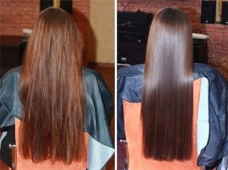 فوائد و أضرار و أنواع الفيلر للشعر وما هي تكلفة Hair Filler